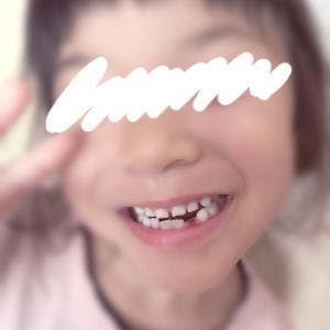 5歳11ヶ月 3本めの歯が抜けた