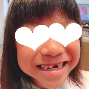 6歳9ヶ月 上の歯が抜けた