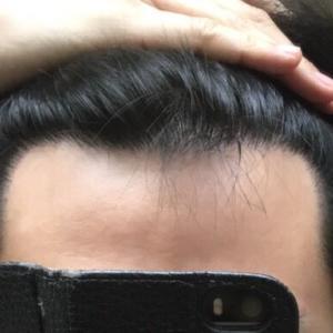 M字植毛後〜8ヶ月目〜