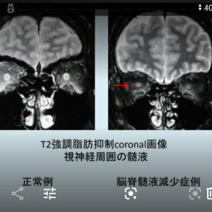 数年前まではこのMRI写真をみても異常なしといっていたでしょう2