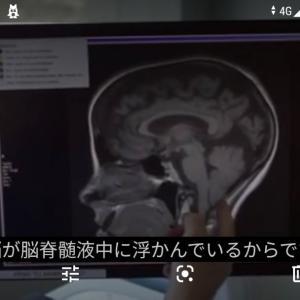 脳⭐は突然の衝撃を受けるとどうなるか