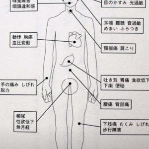脱水の先脳脊髄液減少症