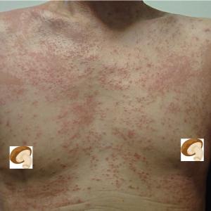 謎の発疹の原因は「シイタケ」だった!! シイタケ皮膚炎とは?