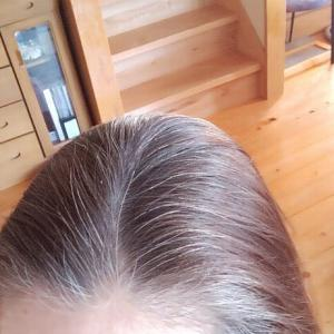 白髪育て中のその後