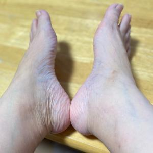 足がっ!( ̄▽ ̄;)!