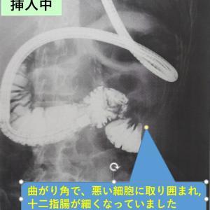腸閉塞で入院中