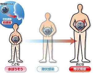 青天の霹靂!! 帯状疱疹に罹る(前編) ~せいうち日記149