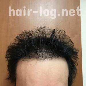 【植毛手術後241日目】今植毛できないならヘアバンクに貯毛しとく?費用はいくらかかるの?【最先端医療・毛包培養】