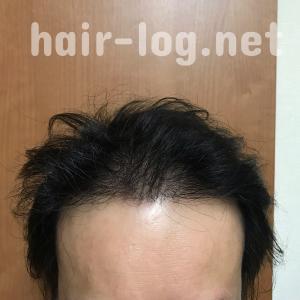 【植毛手術後242日目】アロマオイルで薄毛予防。何気に使ってたティーツリーオイルがすごかった。侮れないその効果とは?【脂漏性湿疹にも】
