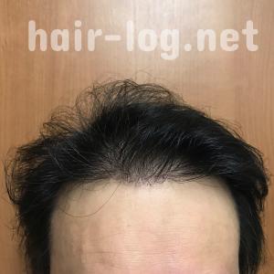 【植毛手術後243日目】まさか!侮れないニンニクの育毛効果!成長因子、抗酸化、発毛促進…結構ガチで凄かった。