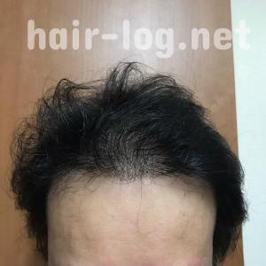 【植毛手術後246日目】ビタミンDで死んだ毛根が復活!?何をやっても毛が生えない原因はビタミンD欠乏だった!?