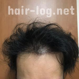 【植毛手術後247日目】ミノキシジル変えました。泡タイプはやめました。【育毛剤はこれだけ】