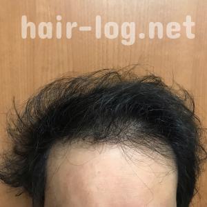 【植毛手術後250日目】今日はまとめページの更新日。髪型で全然違って見える件。