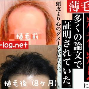 【植毛コラム】薄毛で精神障害に。多くの論文で証明されていた。【頭皮より心のダメージ】
