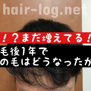 【植毛手術後1年目】え!?まだ増えてる!?植毛後1年で髪の毛はどうなったか公開します。