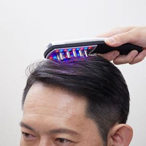 【衝撃】頭皮に電気パルスを浴びせまくれば髪が生えると発表される!!!!!!!!!!!