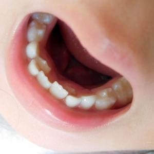 口の中に血豆が出来るABHになりやすい食べ方(自分の食べ方のクセ)