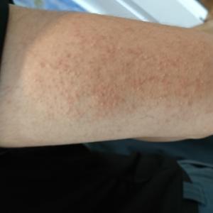 二の腕のニキビ?「毛孔性角化症」は絶対に潰さないでじっと耐えよう