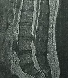 椎間板ヘルニア リターンズ L3
