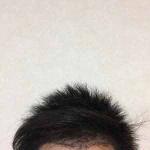 植毛の満足度が高い人低い人