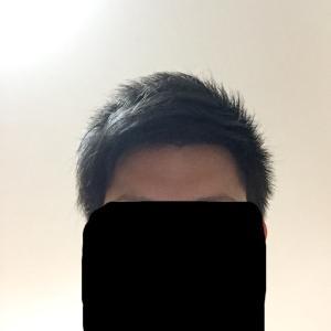 髪をセットした状態での見え方