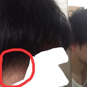 移植毛の縮れ具合