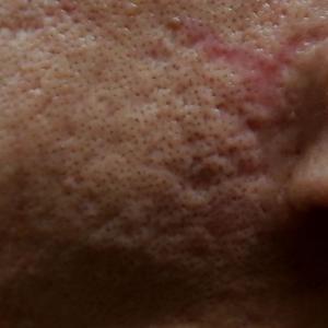 ニキビ跡クレーター凹みを治す治療2ヶ月目へ