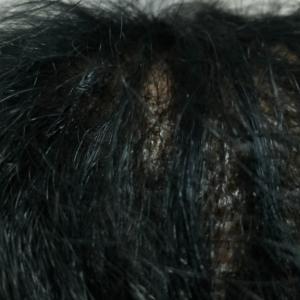 19、10日目 かさぶたに移植毛