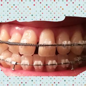 【矯正】[第23回調整日]前歯すきっ歯時代 PART2・・