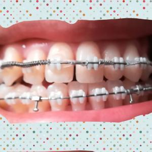 【矯正】[第24回調整日]すきっ歯時代の終わり