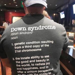 ダウン症の定義とは・・・
