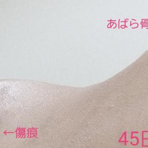 腹部脂肪吸引 45日目 あばら骨と傷痕 写真 (韓国トップライン)
