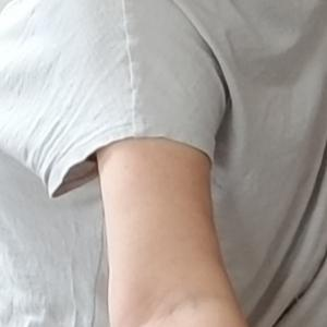 二の腕脂肪吸引 9ヶ月 経過写真⑯