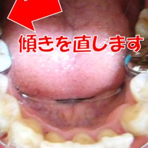調整22回目~奥歯の傾きを直します~