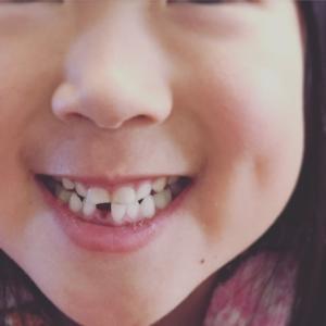 11ヶ月児、ねーちゃんの歯を抜く