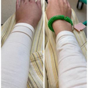入院⑥ 8日目 放射線治療2日目