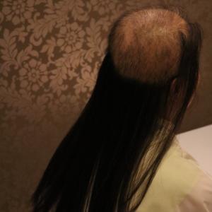 抜毛症だってお洒落を楽しめるんだよ37ー27年間の抜毛症に終止符を!