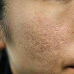 ニキビ痕のクレーター(凹み)の治療などで、皮膚が硬くなってしまってる方でも、治せます