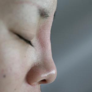 鼻のヒアルロン酸分解とクレヴィエル(ヒアルロン酸)注入
