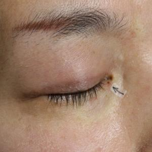 眼の際にあるホクロも、安全にとることができます。