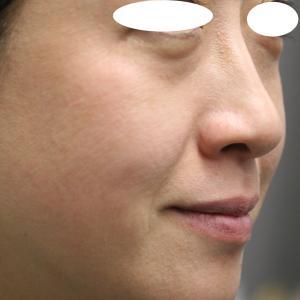 目元のたるみグマは、落ちてきた脂肪が原因です。だから、脂肪溶解注射が効果的