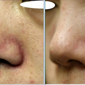 鼻の毛穴開きは、自分のお手入れが原因でないことがほとんどです。