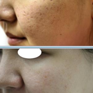 ニキビ痕の凹み(ニキビ痕のクレーター)は、しっかり治療をすると、美肌にも見えるまで改善します。