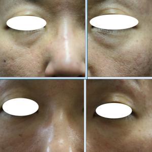 脂肪溶解注射と水光注射で目元が20歳若返ります