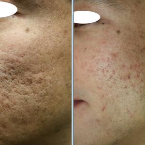 ニキビ痕の凹み(クレーター)の、凹みピーリング治療にパールレーザーを合わせたときの肌の状態