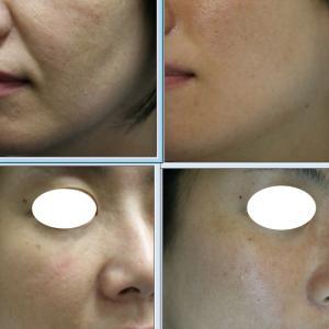 ウルセラ+水光注射で肌のたるみがひきあがり、つやつや美肌に