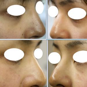 目元のへこみグマ。少し、ヒアルロン酸を注入するだけで、陰影もとれてすっきりした感じになります。