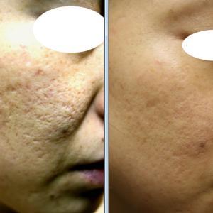 炎症を繰り返して硬くなっている肌でも、オリジナルのニキビ痕の凹みピーリングは皮膚に浸透します。