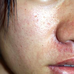 ニキビ痕のクレーター(凹み)治療と、オイリー肌(多指症)治療で、一気に美肌へ
