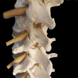 腰痛は悪化して神経痛になることもある